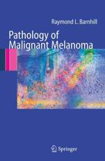 Pathology of Malignant Melanoma