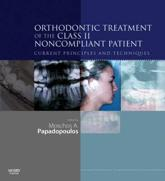 Orthodontic Treatment of the Class II Non-Compliant Patient