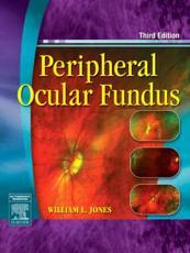 Peripheral Ocular Fundus