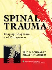 Imaging of Spine Trauma