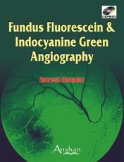 Fundus Fluorescein and Endocyanine Green Angiography