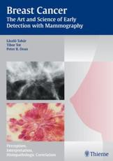 Mammography - The Art and Science of Early Detection