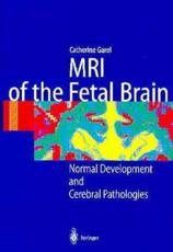 MRI of the Fetal Brain