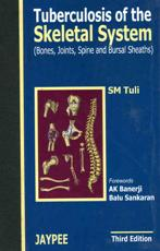 Tuberculosis of the Skeletal System