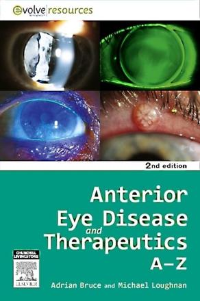 ISBN: 9780729539579 - Anterior Eye Disease and Therapeutics A-Z
