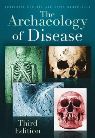 ISBN: 9780752457505 - The Archaeology of Disease