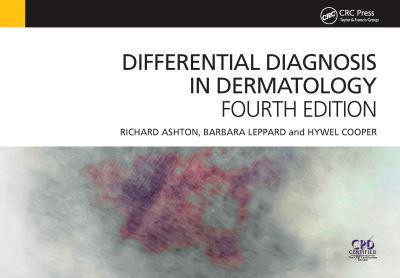 ISBN: 9781909368729 - Differential Diagnosis in Dermatology