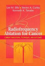 Radiofrequency Ablation for Cancer